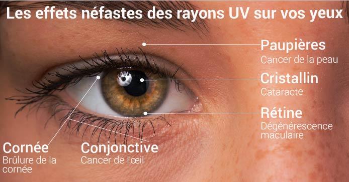 Les effets néfastes des rayons UV sur vos yeux
