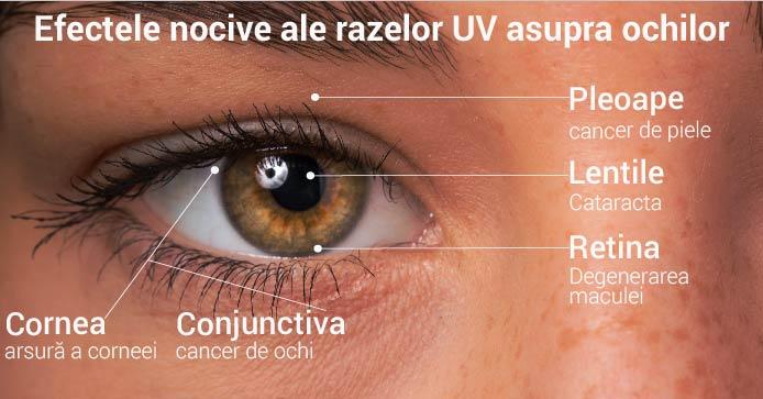 Efectele dăunătoare ale razelor UV asupra ochilor