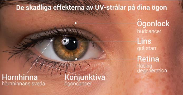 De skadliga effekterna av UV-strålar på dina ögon