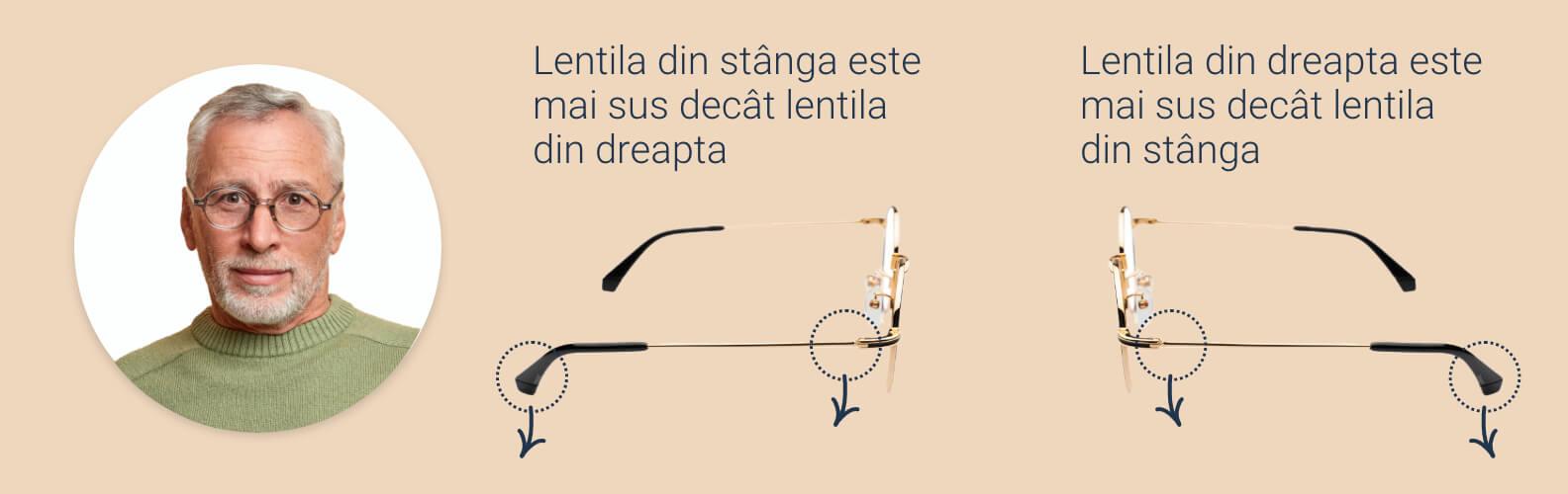 Cum să slăbiți ramele ochelarilor și pernițele pentru nas