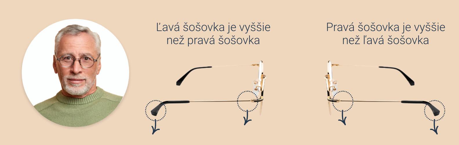 Ako povoliť rámy okuliarov a nosové opierky