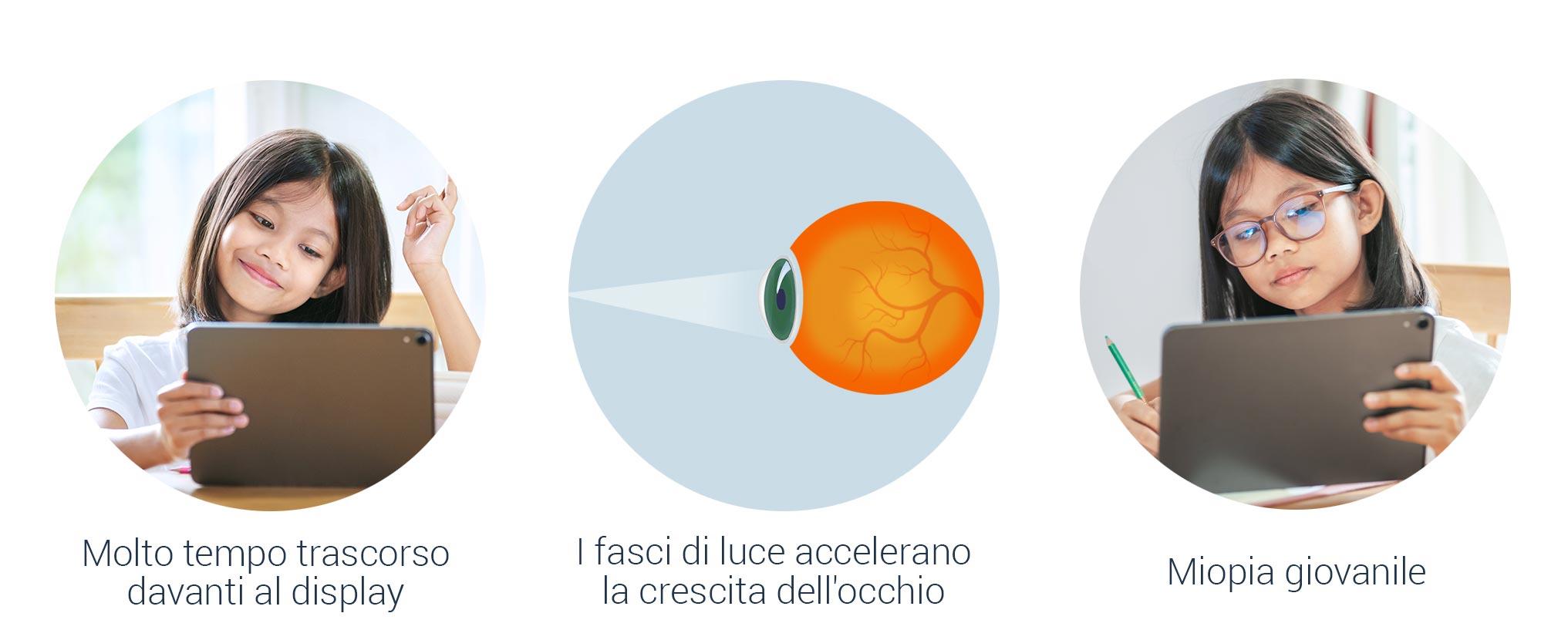 Le cause della miopia nei bambini