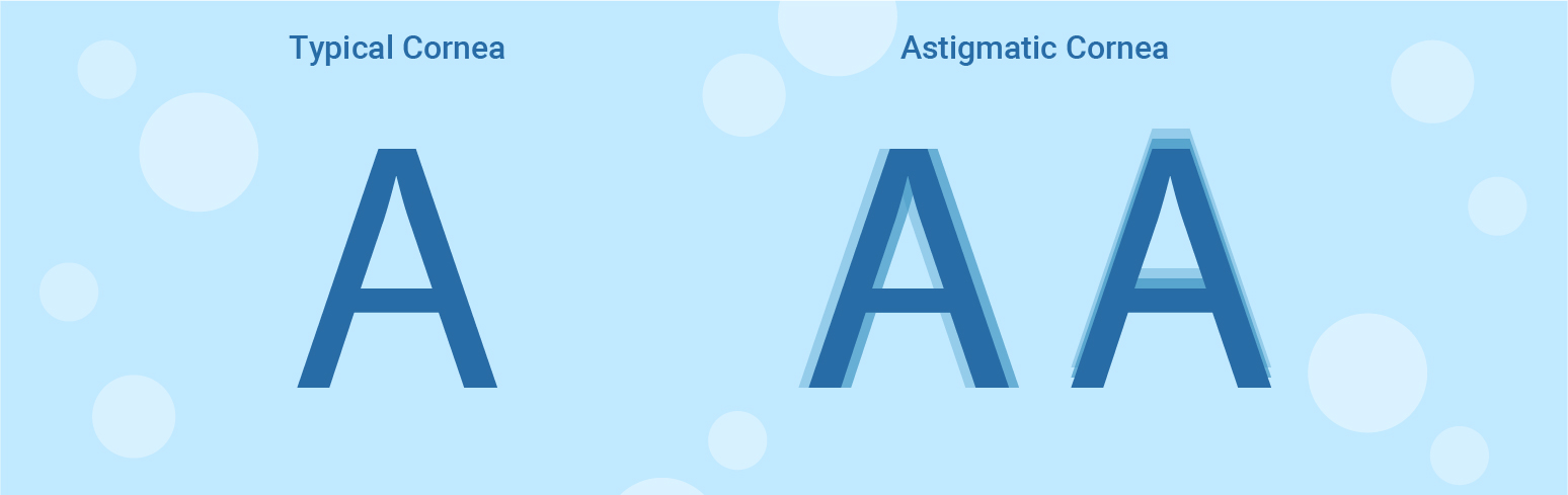 typical and astigmatism cornea